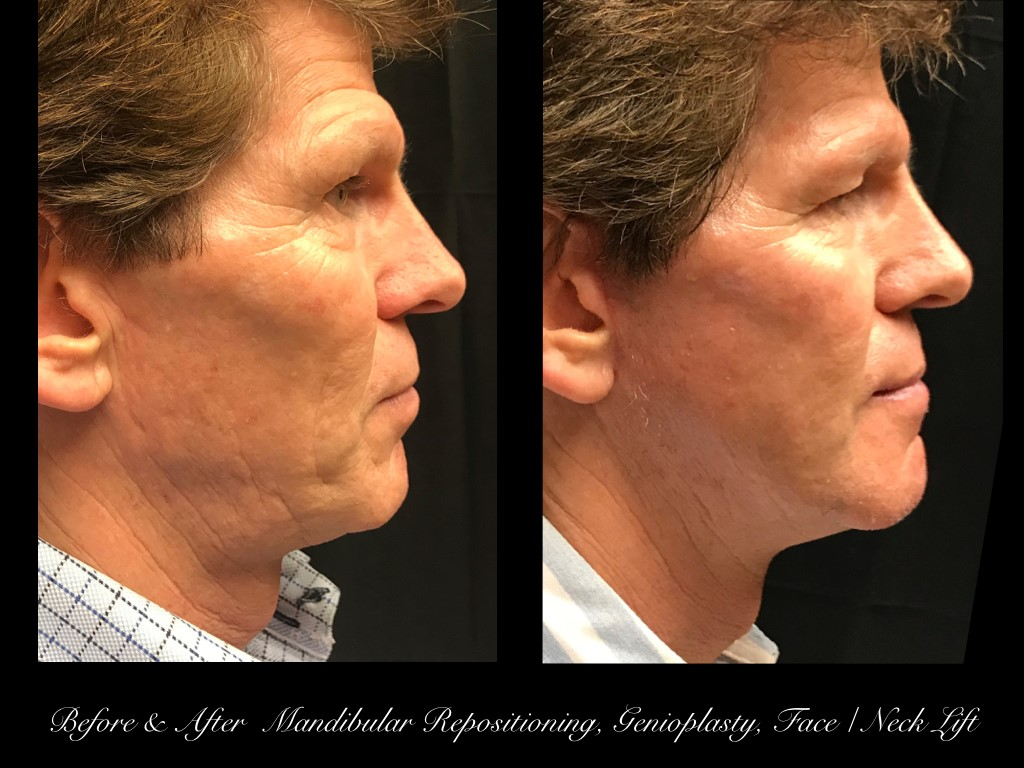 side view of man's face before and after mandibular repositioning, genioplasty, and face and neck lift