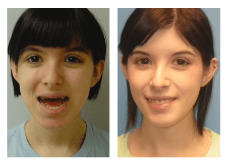 before and after photos of girl with jaw surgery