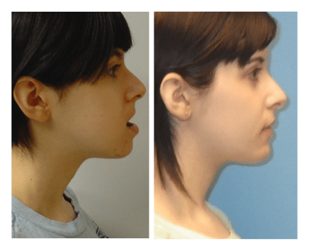 side view before and afters of girl with jaw surger