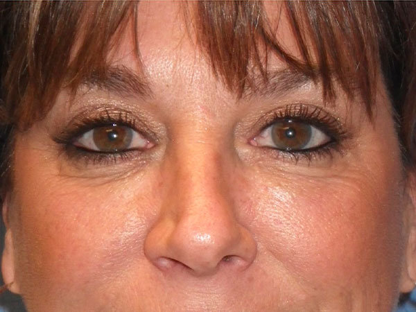woman's face after cheek filler
