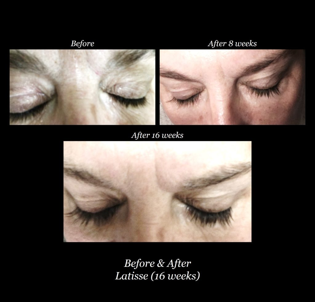 woman's eyelashes shown before, after 8 weeks, and after 16 weeks of Latisse treatment