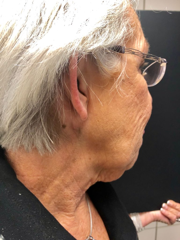 side of woman's face and neck after cyst removal