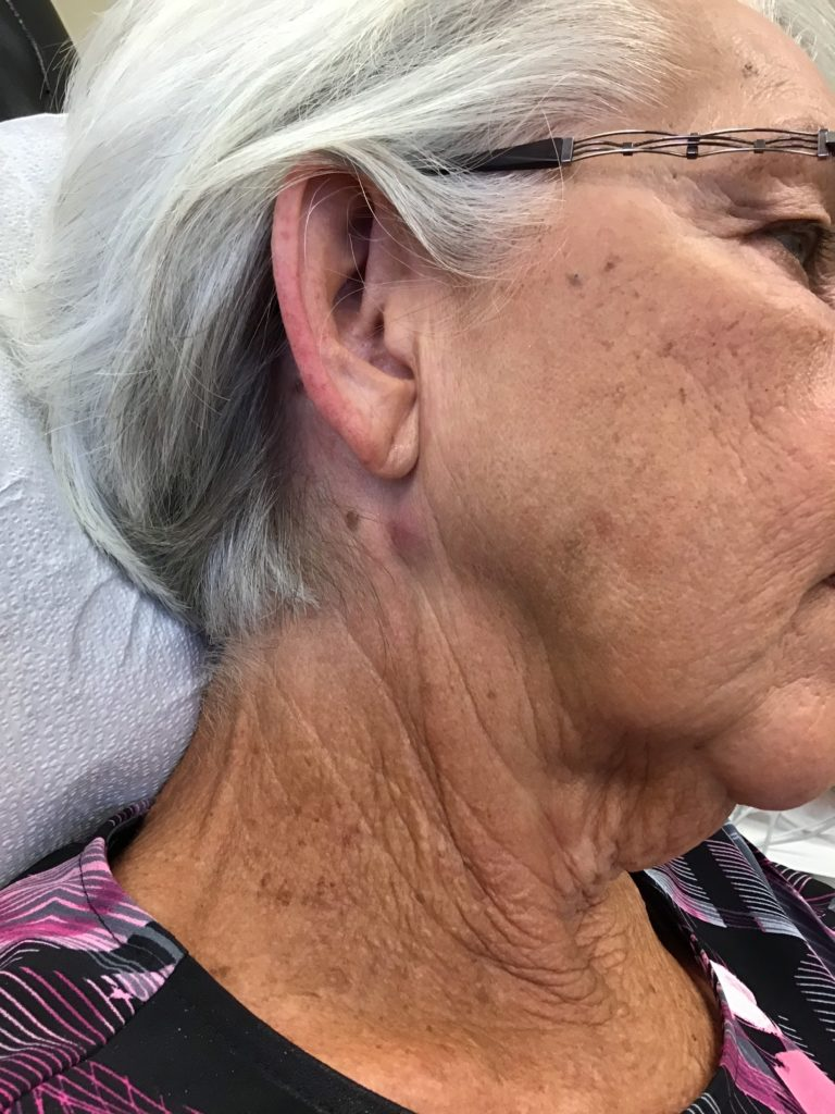 side of woman's face and neck before cyst removal