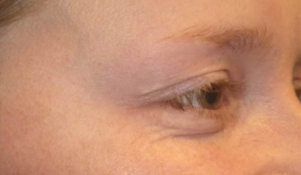 close up of crows feet after botox