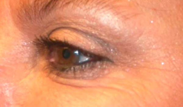 close up of woman's crows feet after botox