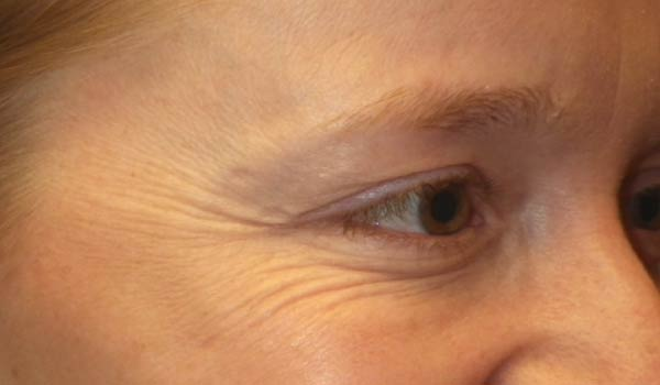 close up of crows feet before botox