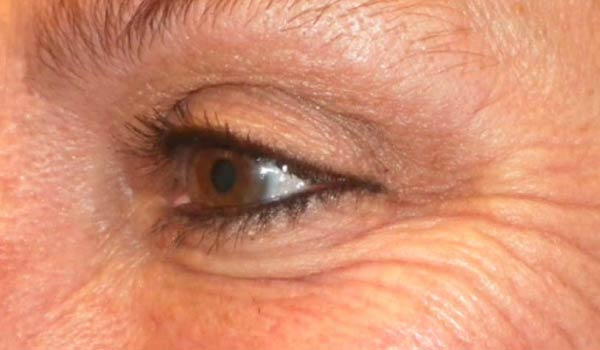 close up of woman's crows feet before botox