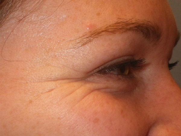 side view of eye before eye filler treatment