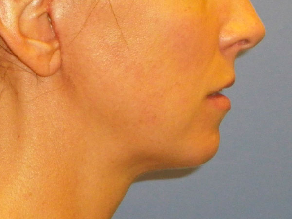 side of woman's face after face lift