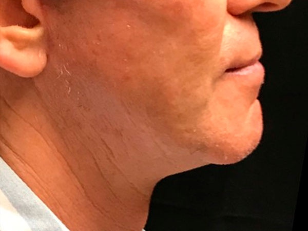 side view of man's neck and chin after face lift