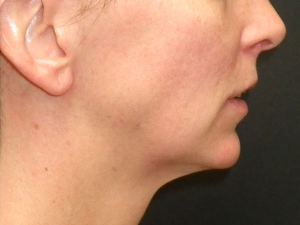 side of woman's face before face lift