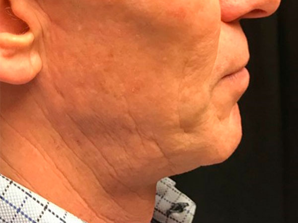 side view of man's neck and chin before face lift