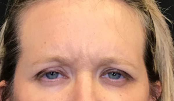 close up of woman's eyes after botox