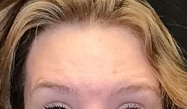 closeup photo of woman's forehead after botox