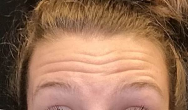 closeup of woman's forehead wrinkles before botox