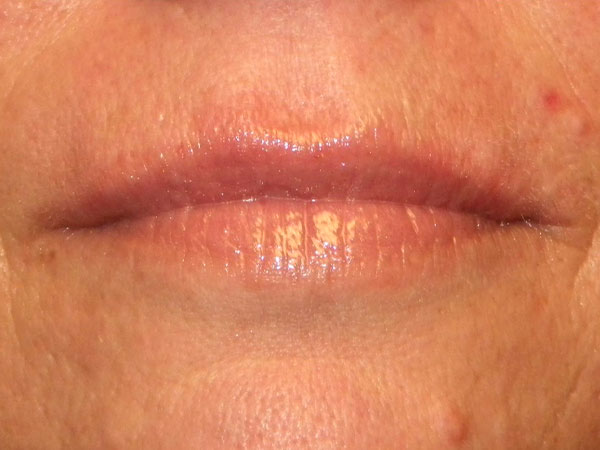 close up of woman's mouth after having hyaluronic lip filler