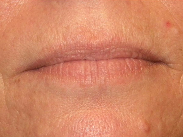 close up of woman's mouth before having hyaluronic lip filler