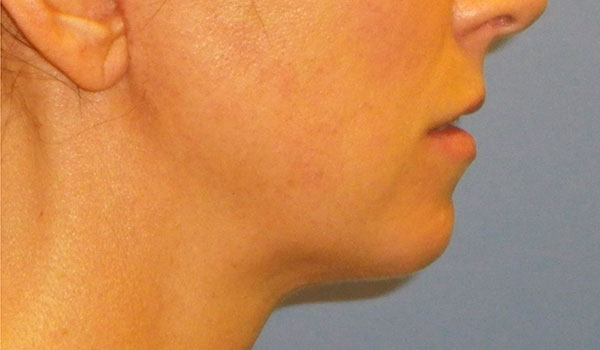 side of chin after jaw surgery