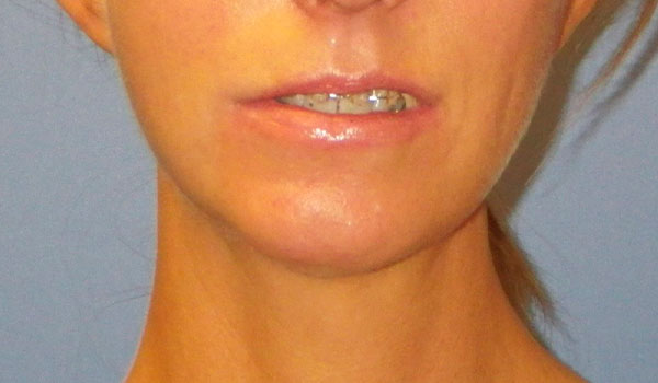 woman's mouth and chin after jaw surgery