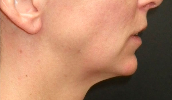 side view of face before jaw surgery