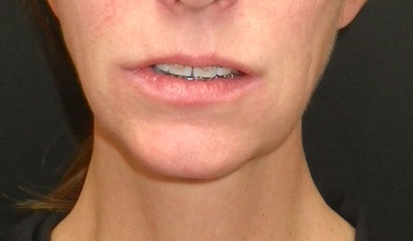chin and mouth with braces before jaw surgery