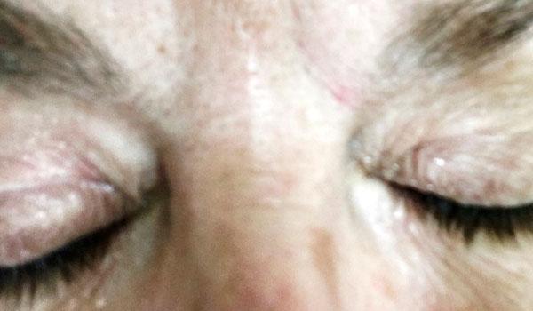 closeup of eyelashes before using Latisse