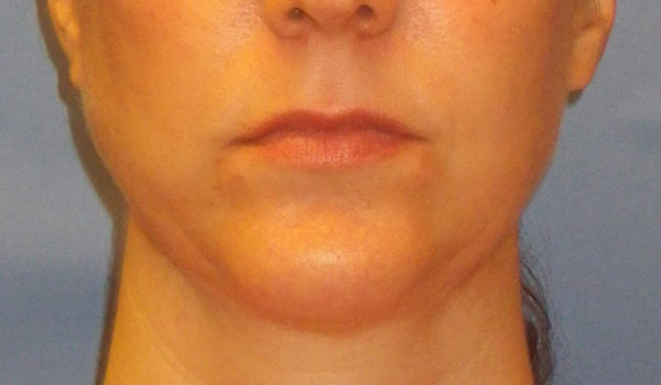 woman's mouth and chin after mandibular implants