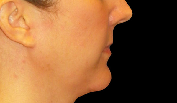 side view of woman's face after mandibular implants