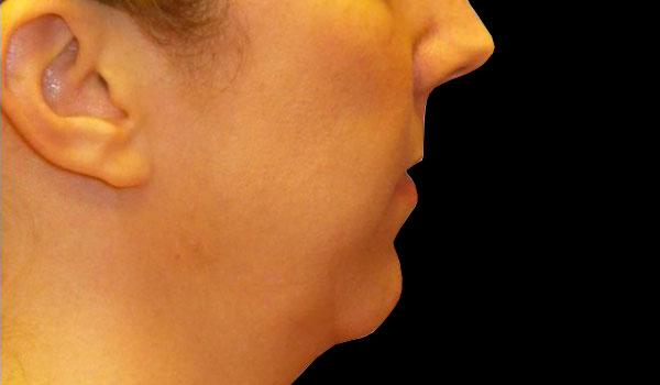 side view of face before mandibular implants