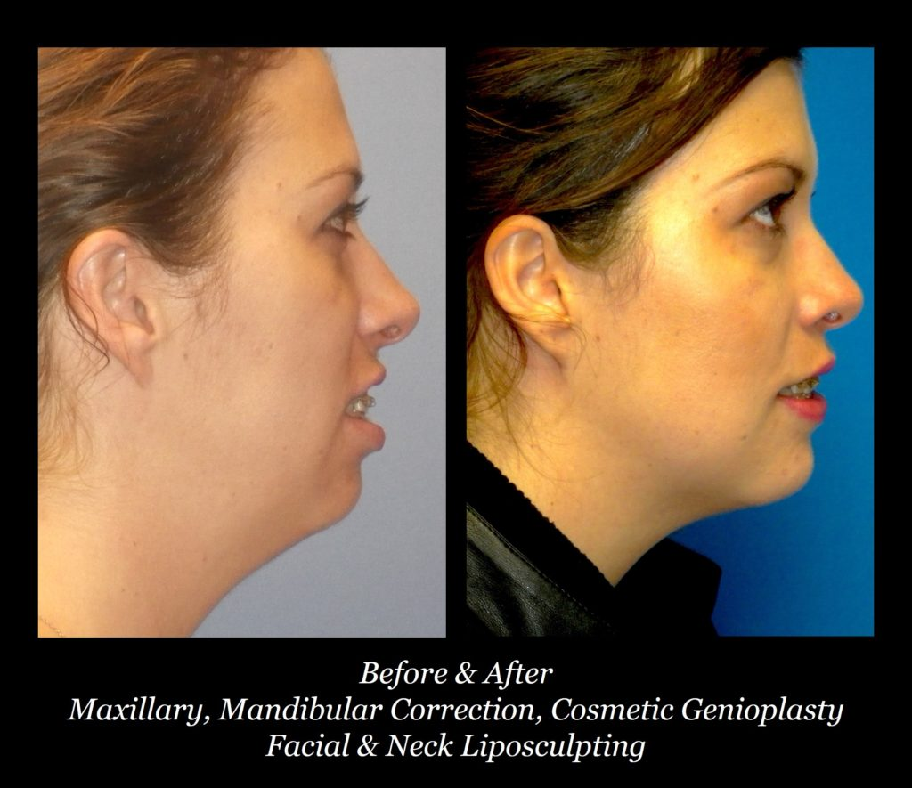 side view of before and after photos of woman's maxillary mandibular correction, cosmetic genioplasty, and facial and neck lipsculpting