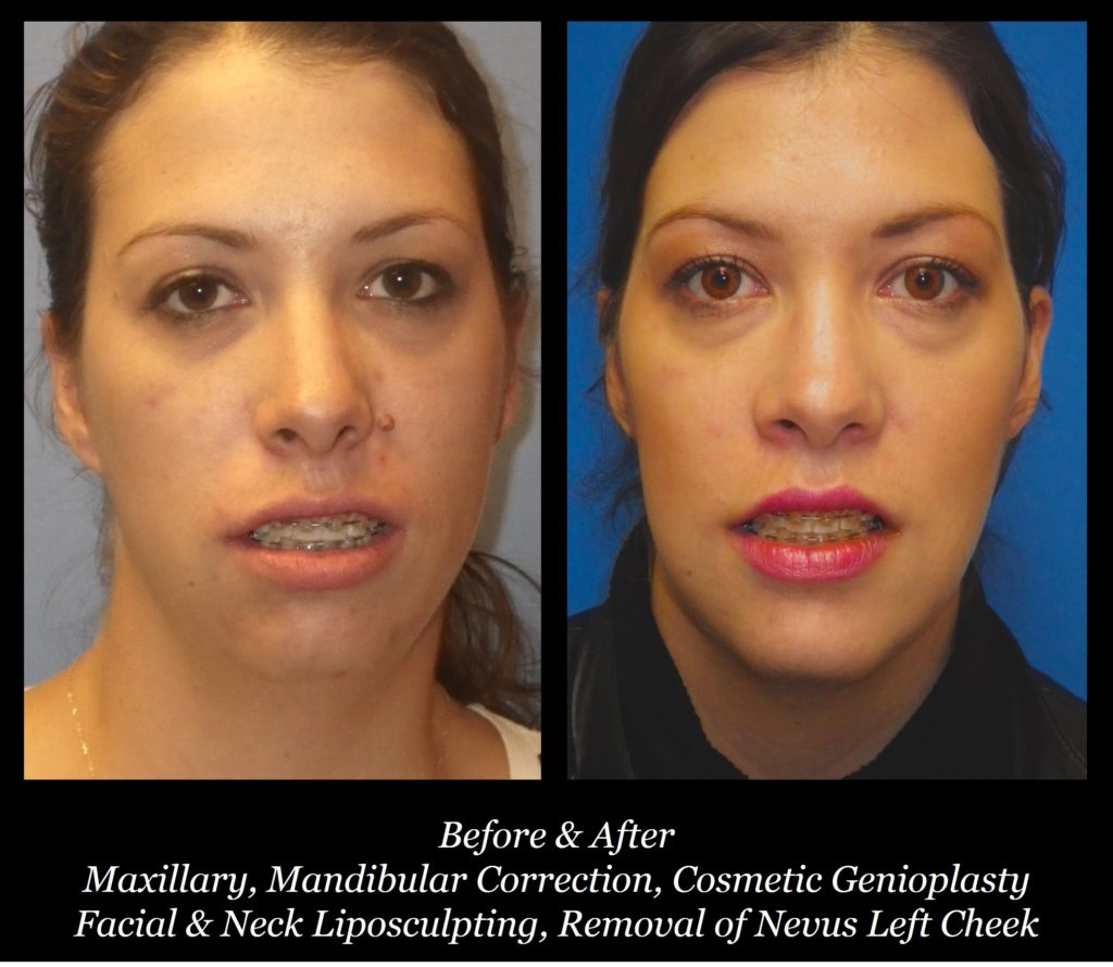 before and after photos of girl with maxillary mandibular correction, cosmetic genioplasty, facial and neck liposculpting, and removal of nevus left cheek