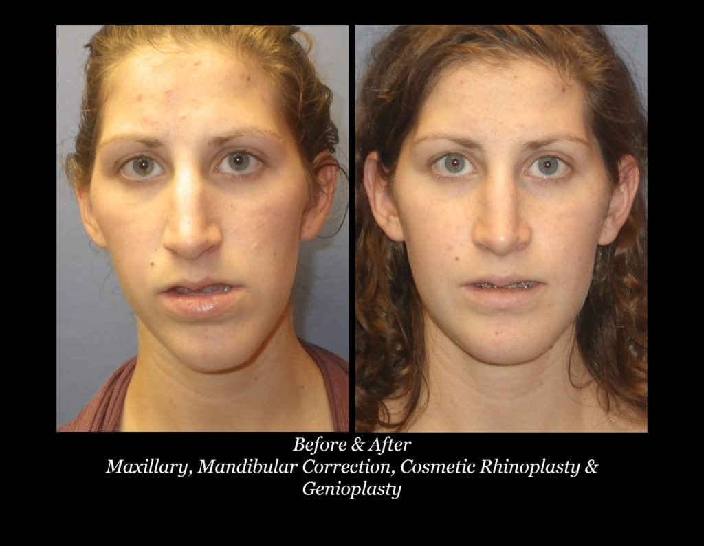 before and after photos of girl with maxillary, mandibular correction, cosmetic rhinoplasty, and genioplasty
