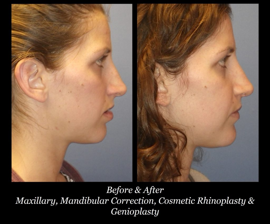 side view before and after photos of girl with maxillary, mandibular correction, cosmetic rhinoplasty, and genioplasty