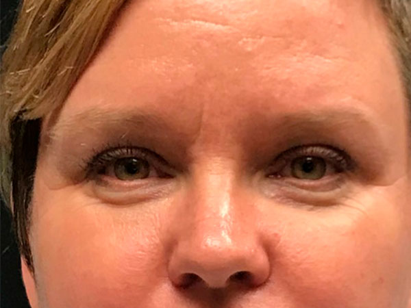 close up of woman's face after microneedling treatment