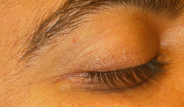 close up of eyelid after mole removal