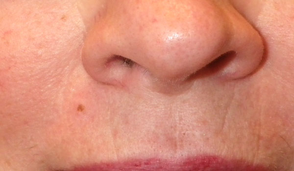 woman's nose and mouth after mole removal