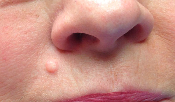mole above woman's lip