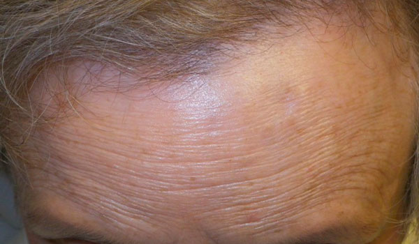 woman's forehead after osteoma removal