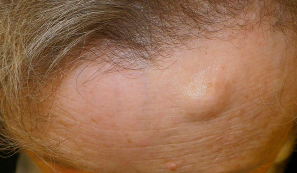 woman's forehead before osteoma removal