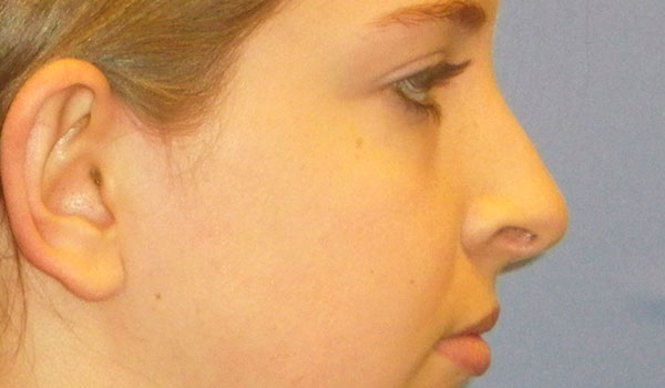 side view of girl's nose after having rhinoplasty