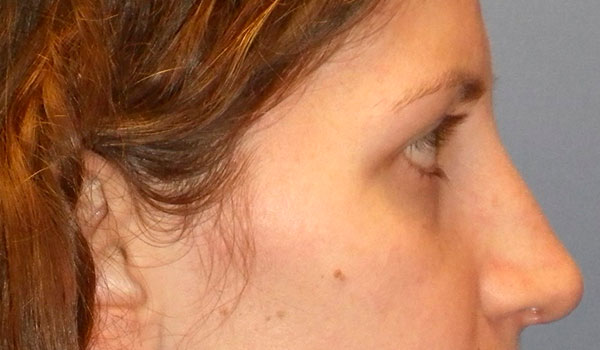 side view of girl's nose after rhinoplasty