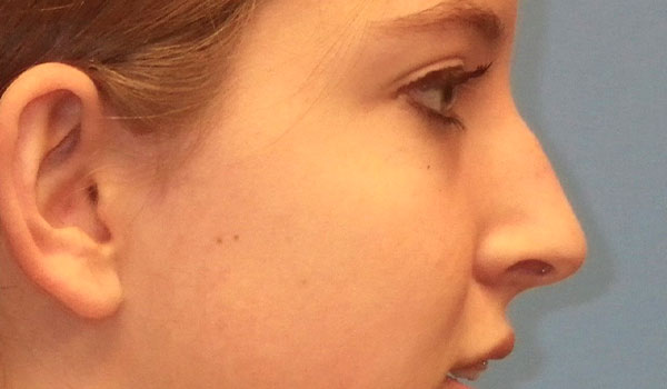 side view of girl's nose before having rhinoplasty