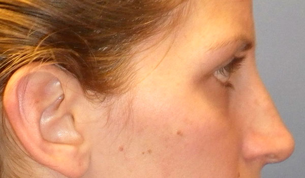side view of girl's nose before rhinoplasty