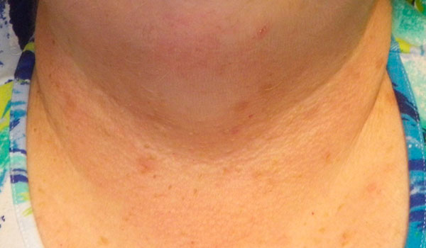 neck and chest after skin tag removal