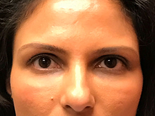 woman's eyes after Versa eye filler