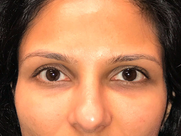 woman's eyes before Versa eye filler