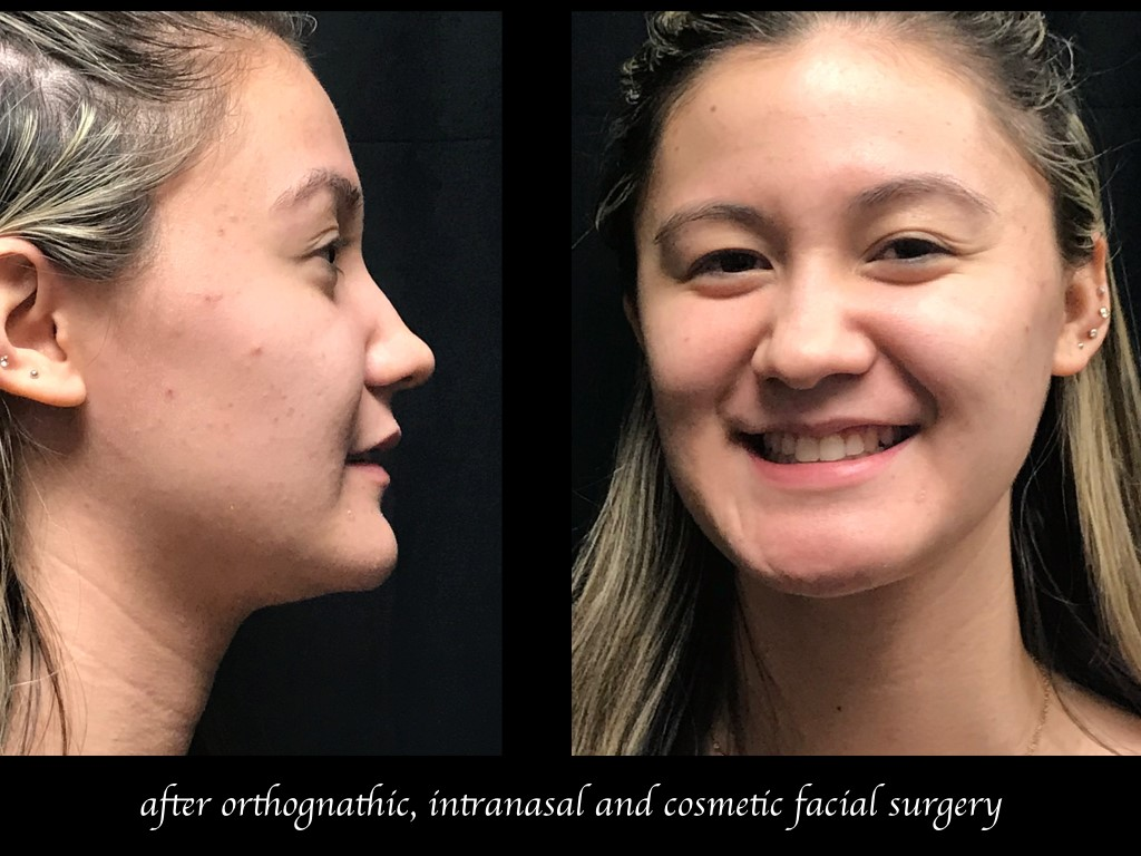 side and front photos of girl after orthognathic intranasal and cosmetic facial surgery
