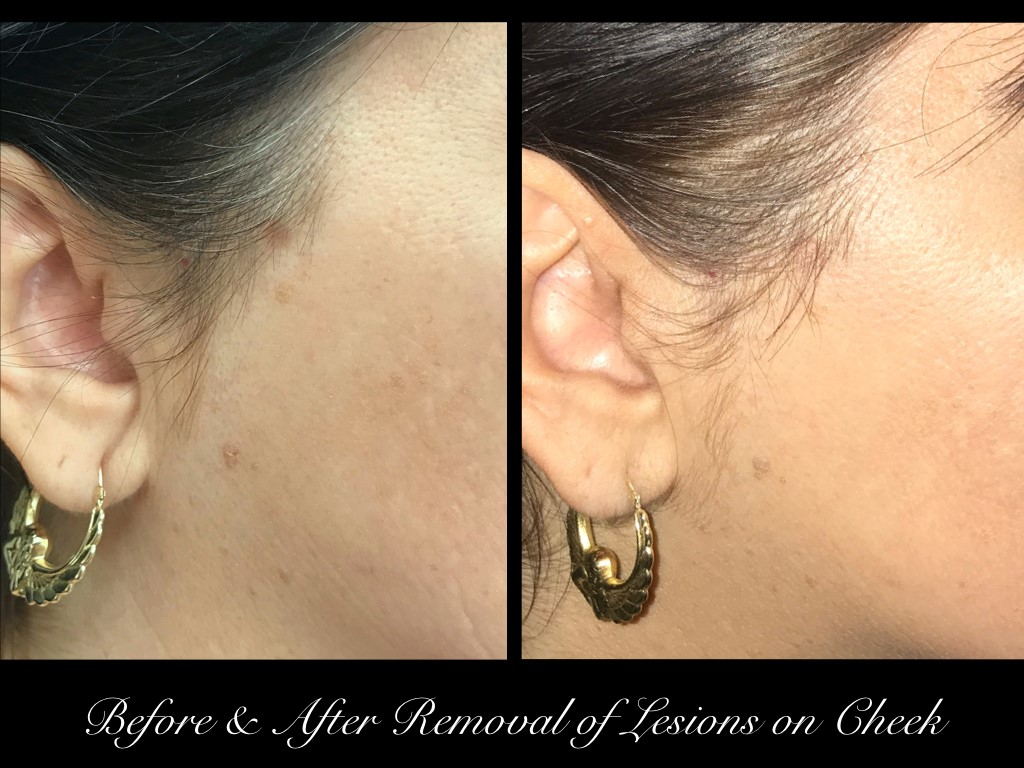 before and after removal of lesions on woman's cheek right