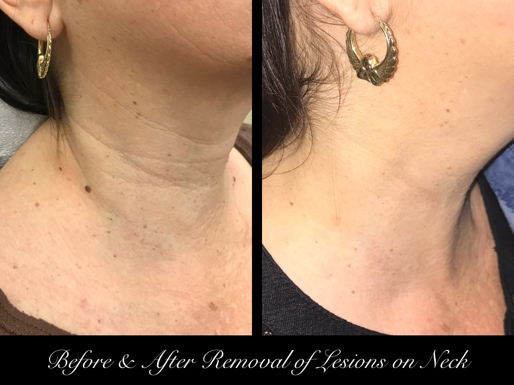 before an after removal of lesions on woman's neck right
