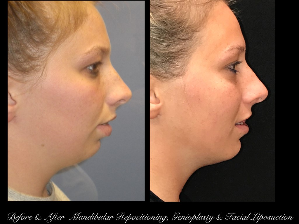 side view before and after photos of a girl with mandibular repositioning, genioplasty, and facial liposuction